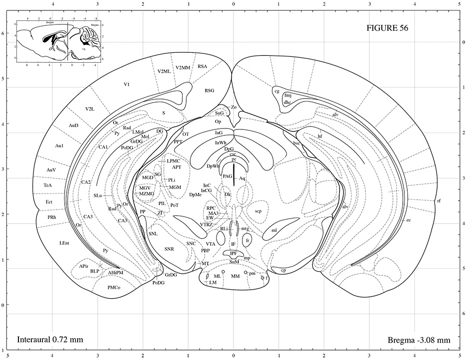 rat brain coronal sections - 28 images